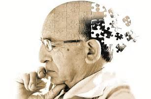 Resultado de imagen para Se describe nueva biología de la enfermedad de Alzheimer
